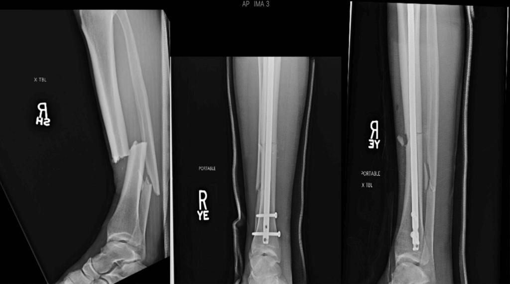[foto] chris weidman mostra antes e depois da lesão raio-x